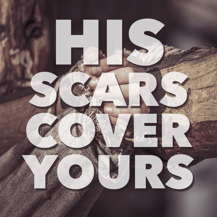 his-scars